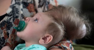 Infant With Brain Growing Outside His Skull Saved By Pioneering Surgery