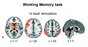 Buzzing_Human_Brain_Electricity_Help_Boost_Working_Memory_Scientists_Report_Shows